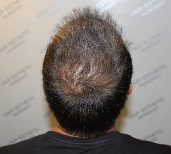 Harsányi Gergely hajbeültetés után 2 hónappal