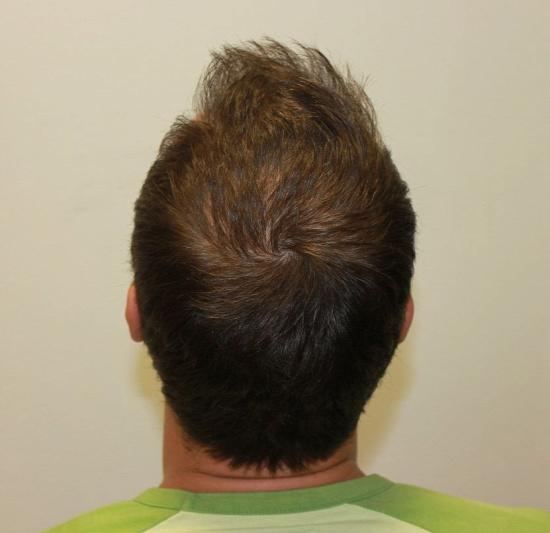 Harsányi Gergely hajbeültetése