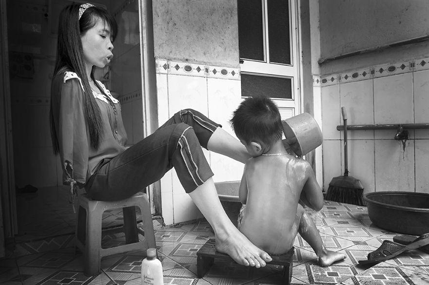 A világ érdekes vietnam lány karok nélkül kar agent orange vietnámi háború