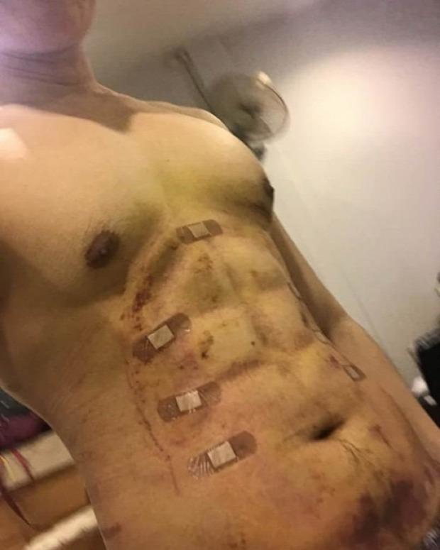 isten állatkertje plasztikai műtét sebészet hasizom hamis fake
