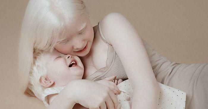 albino lány testvér Kazahsztán