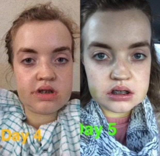 A világ érdekes műtét plasztikai