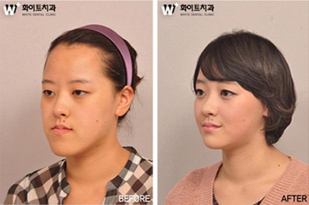 A világ érdekes Dél-Korea plasztikai műtét