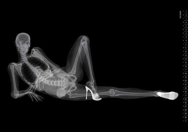 naptár A világ érdekes meztelen lány röntgen