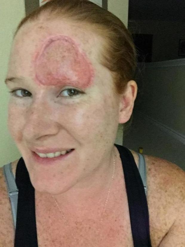 A világ érdekes melanoma bőrrák homlok