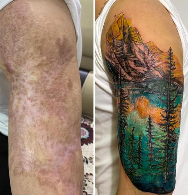 tetoválás heg seb sebhely