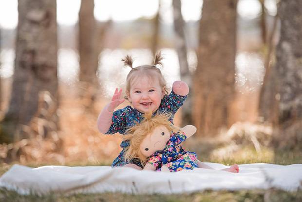 gyerek fogyatékos baba hasonló