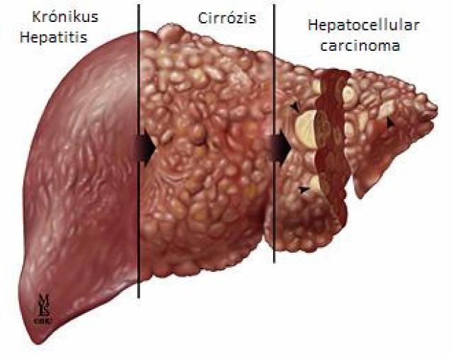 orvosi műhiba per orvosi műhibaper kártérítés sérelemdíj ügyvéd hepatitis C májkimélő diéta májrák májgyulladás elévülés  cirrózis májzsugorodás
