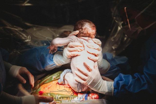 császármetszés fotósorozat saját szülés szülésznő bába
