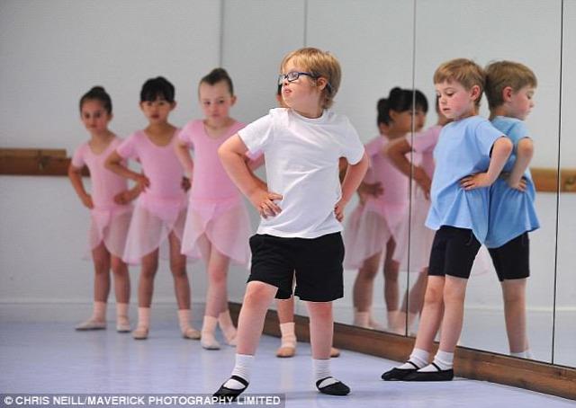 down szindróma balettóra