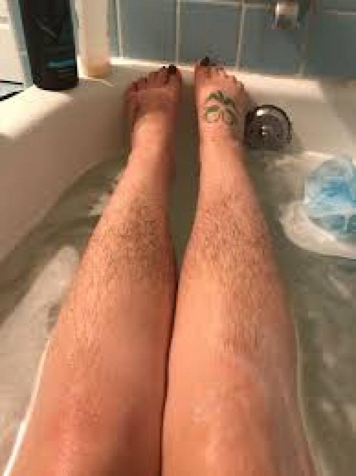 epilálás bikinivonal follikulitisz borotva borotválás
