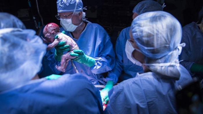 méhátültetés transzplantáció meddőség