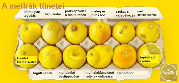 mellrák emlőrák tünetek citrom infografika