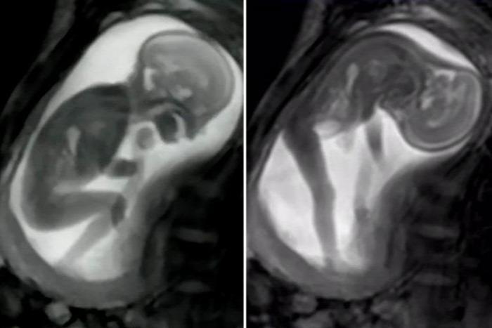 terhesség sugárzás képalkotó vizsgálatok teratogén magzatkárosító videó