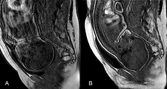 szülés mr vizsgálat mágnesrezonancia koponya alakváltozás