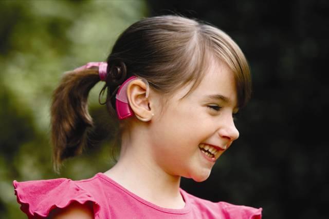 halláskárosodás siket siketség kohleáris cochlearis implantátum cochlearis implantáció videó facebook