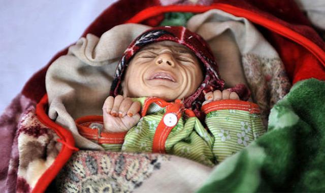 gyermekházasság éhínség jemen