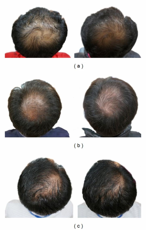 népi gyógyászat hajnövesztés korpás fejbőr gyógyítása fejbőr mélytisztítás