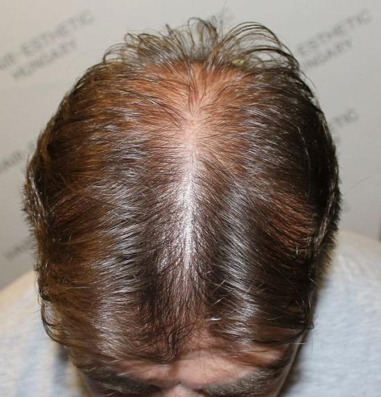 Hajbeültetés után 9 hónappal