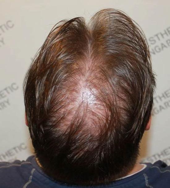 hajbeültetés után kontroll hajhagyma