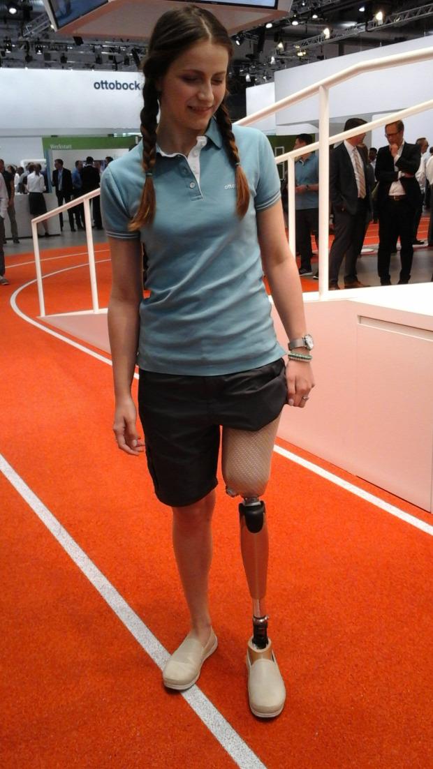 sportceleb moziváció kitartás interjú sport amputáció baleset