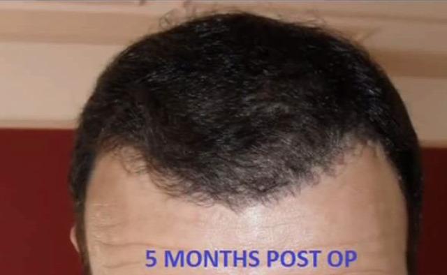 FUE hajbeültetés előtt