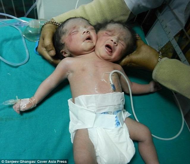 kétfejű sziámi ikrek csecsemő újszülött