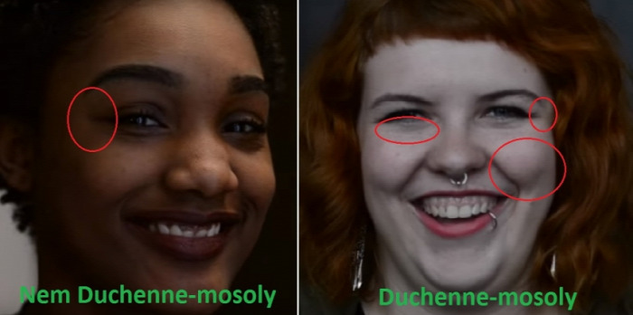 pszichológia hazugság Duchenne testbeszéd arc szépség mosoly öröm érzelmek alapérzelmek meglepettség