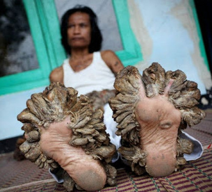 betegség test progeria halszag szindróma kőember faember vámpír vérfarkas korai öregedés ritka betegség