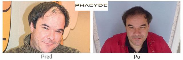 transplantácia vlasov transplantácia vlasov pred po transplantácia vlasov  pred a po transplantácia vlasov vysledky fue fue 2ff4a7b09c3