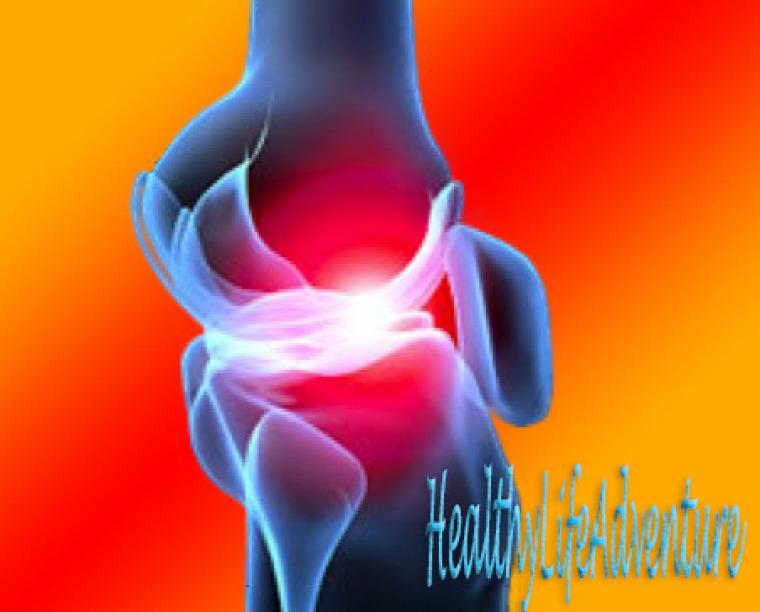 izület izületi fájdalom porckopás kurkuma curcuma longa tömjénfa gyömbér gyömbérsör fájdalomcsillapító fájdalomcsillapítás enyhülés izületi gyzlladás arthritis