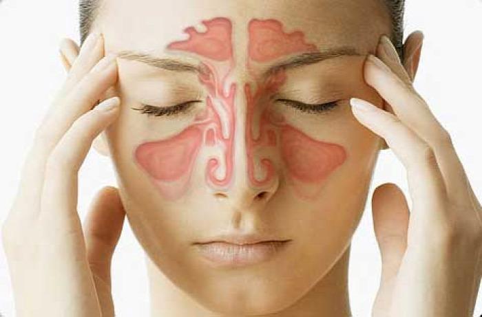 egészség reflux gyomorsav hisztamin köhögés