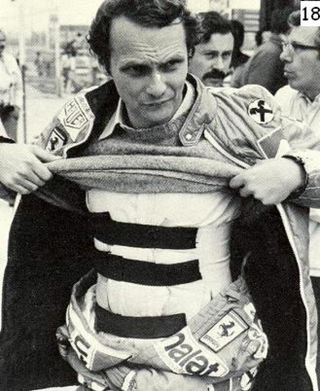 Niki Lauda tüdő-transzplantáció baleset Nürburgring