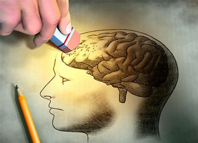 egészség Alzheimer-kór demencia megelőzés tünetek teszt szakértő neurológus