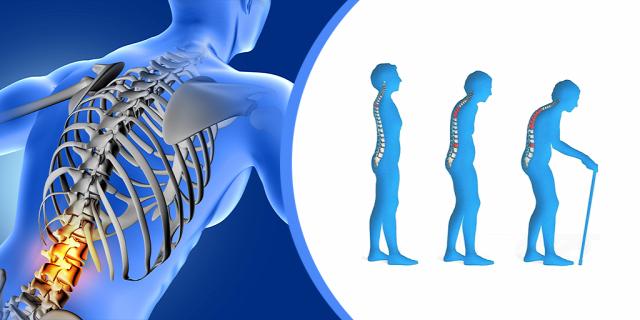 csontritkulás oseoporosis csontsűrűségmérés megelőzés terápia egészség