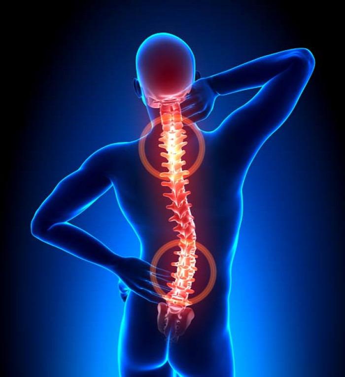 egészség gerincsérv porckorongsérv derékfájás megelőzés autodekompressziós gerincterápia ADT Bene Máté gerincspecialista fizioterapeuta szakértő