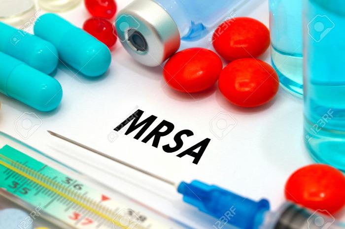 egészség egészségünkre MRSA tünetek kockázatok Dr. Knoll Zsolt szakértő sebész orvos test