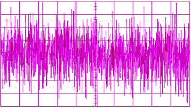 egészség egészségünkre rózsaszín zaj pink noise memória test lélek szakértő Dr. Varsányi Attila hangterápia neurológus  szomnológus