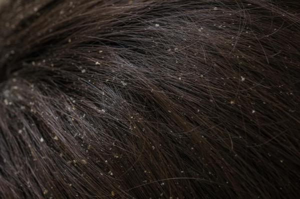 korpásodás korpás haj