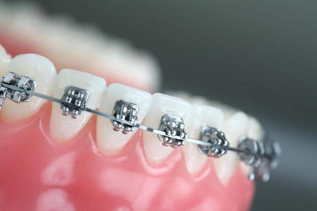 fogorvos fogszabályozó fogszabályozás gyermek fogászat Budapest