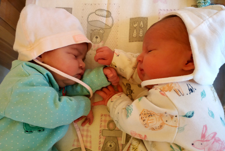Pirilány terhesnapló szülés szüléstörténet császármetszés