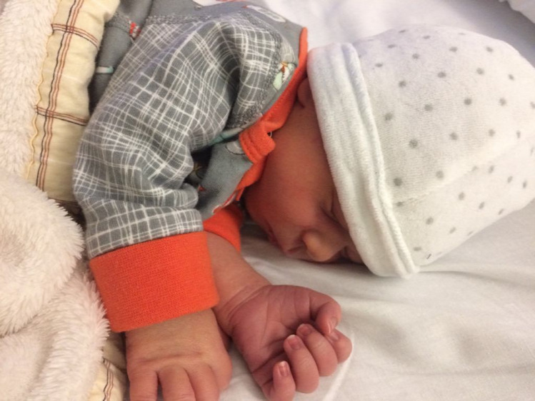 szüléstörténet szülés dongaláb ultrahang