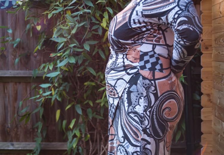 Tildy császármetszés hüvelyi szülés VBAC