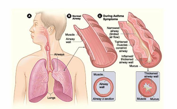Tünde interjú asztma betegség orvos