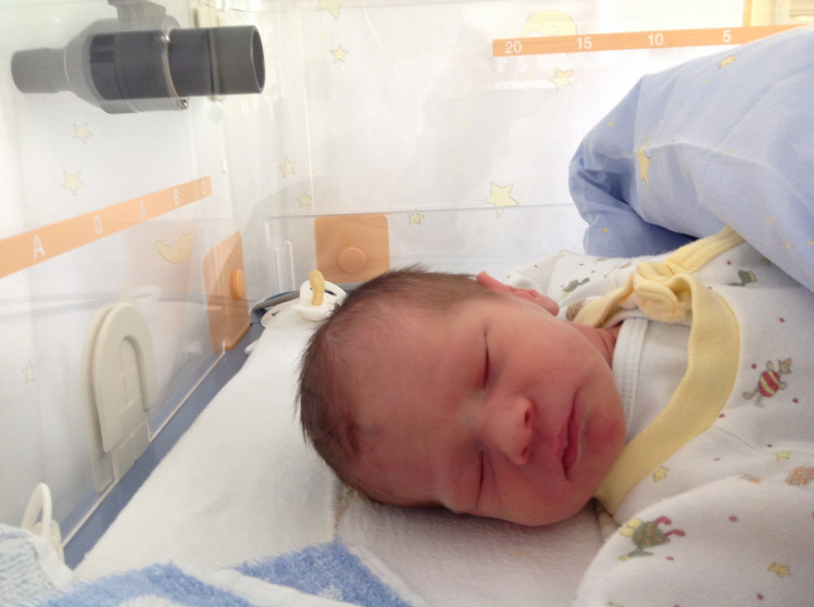 Zizik szüléstörténet szülés császármetszés