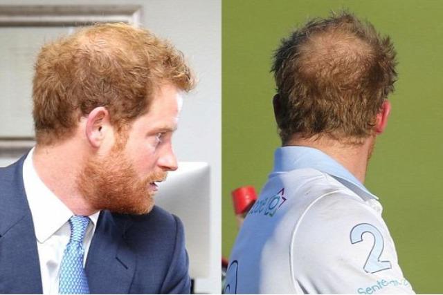hajhullás kopaszodás genetika öröklött kopaszodás harry herceg vilmos herceg család királyi család hajátültetés hajbeültetés hairhungary