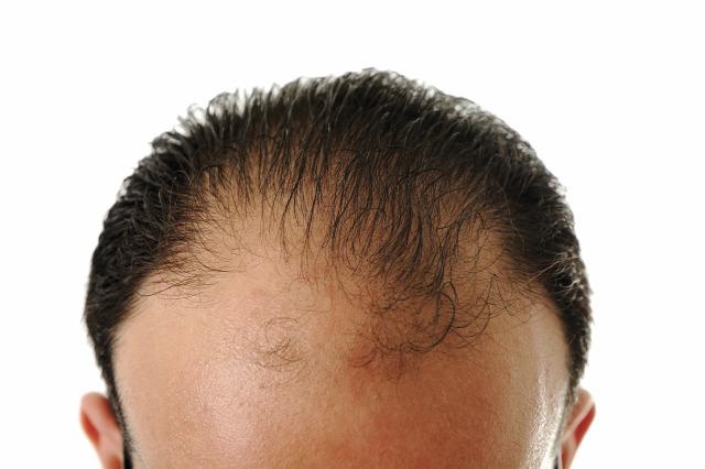 hajhullás kopaszodás androgén hajhullás genetika öröklött kopaszodás végleges kopaszodás hajátültetés hajbeültetés prp kezelés hajkezelés hajterápia hairhungary