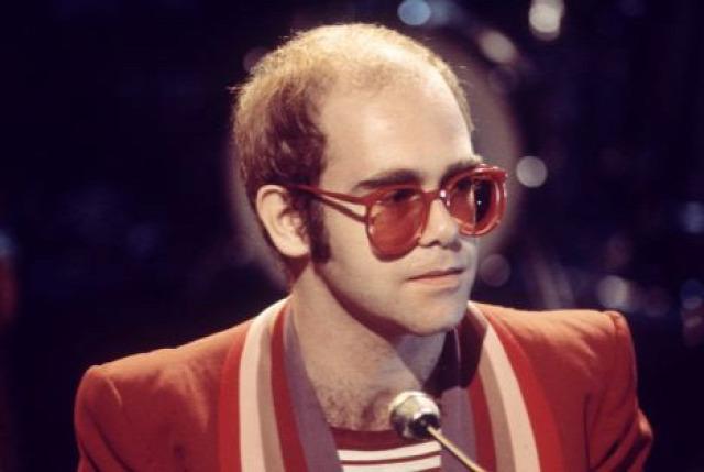 hajhullás kopaszodás öröklött kopaszodás hajátültetés hajbeültetés hairhungary klinika kedvezmény elton john énekes híresség zenész