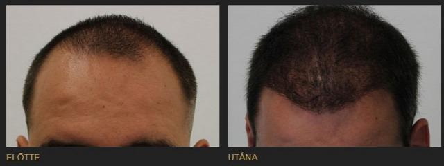hajbeültetés hajátültetés kopaszodás öröklött kopaszodás hajhullás hairhungary hairhungary klinika előtte-utána fotók képek blog 10% kedvezmény