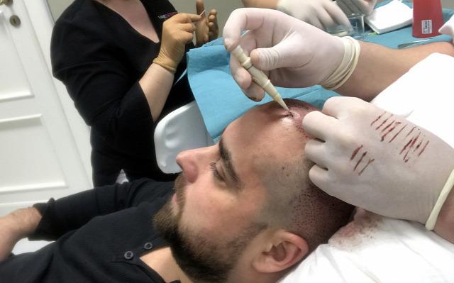 eliás jr. hajhullás kopaszodás hajátültetés hajbeültetés hairhungary zenész híresség Szabó Imre álom